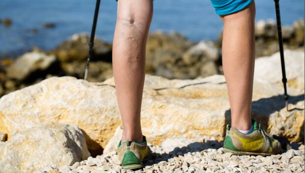 Travel and Lower Leg Swelling | ACTIVE