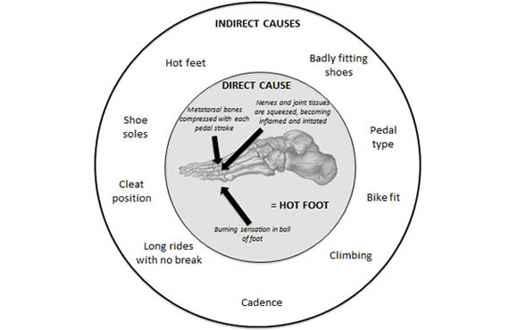 Causes and Prevention of Hot Foot in Cyclists | ACTIVE